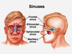 Obat Sinusitis Herbal